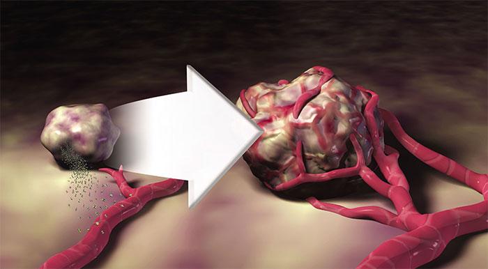 angiogenese-lekker-leven
