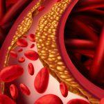 De cholesterol controverse